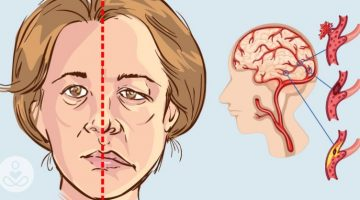 Stroke: The Critical Facts You Need to Know!